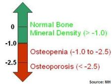 bone-nih-classification-normal-osteopenia-osteoporosis,jpg