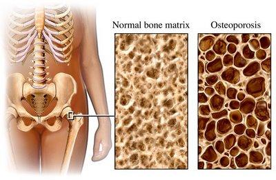 osteoporosis_compare